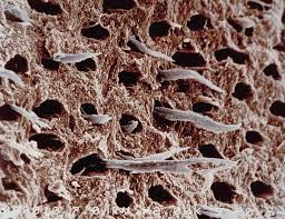 ends of cellular processes (arms) extending out of exposed dentin tubules