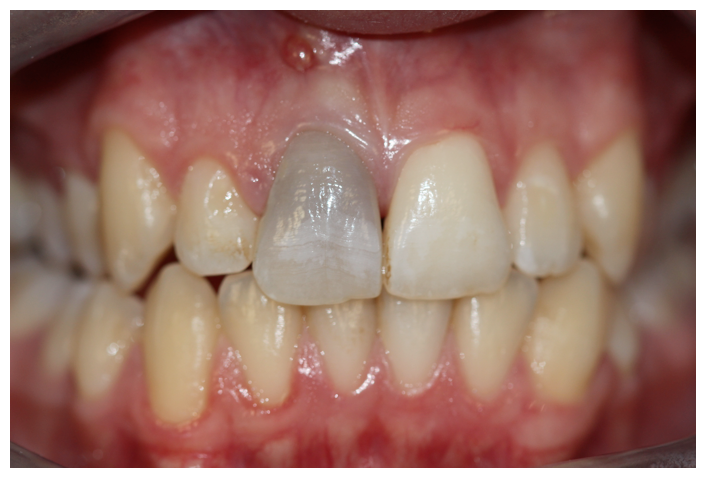 two types of intrinsic stain shown here: The dark front tooth is due to trauma, and the yellowing of the teeth could be the result of food/beverages and/or aging