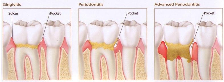periodontal disease .jpg