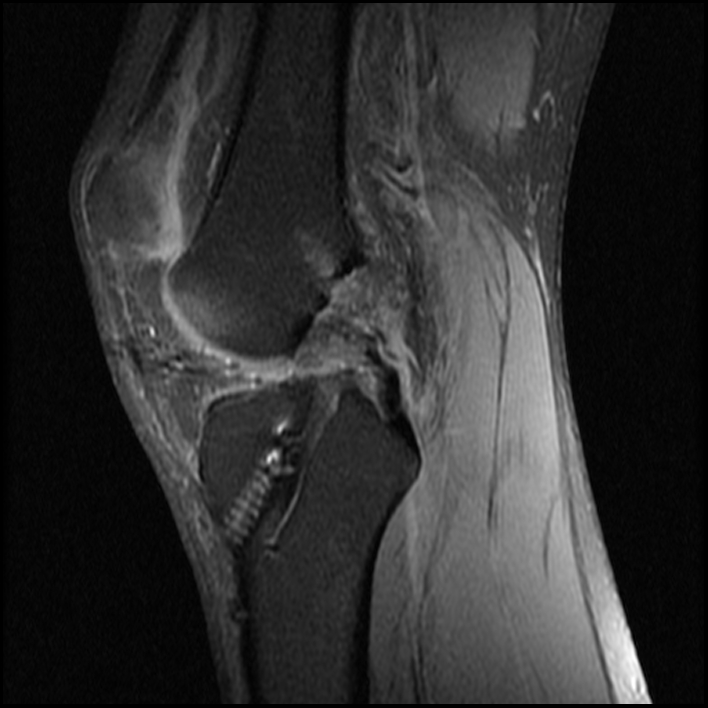 MRI Knee WO - LEFT 0080.jpg