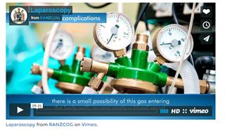 Laparoscopy (from RANZCOG / Vimeo)
