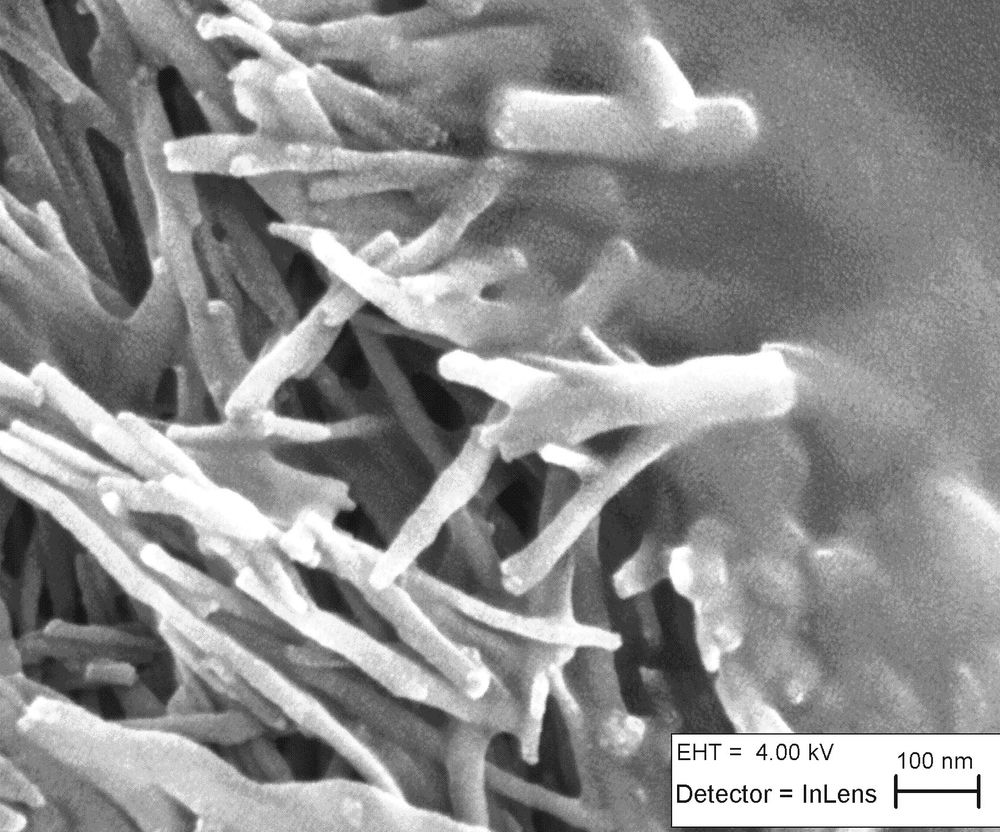 SEM image of the nano-interface on the boundary between ULTRINIA scaffold and a cancer cell.