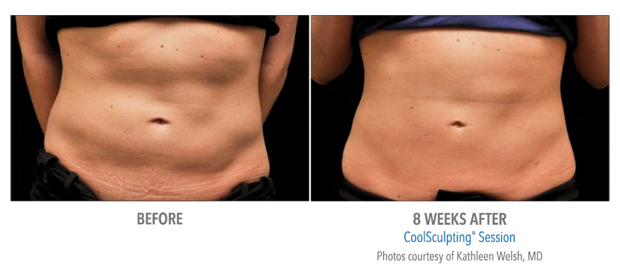 CoolSculpting session before and after stomach image