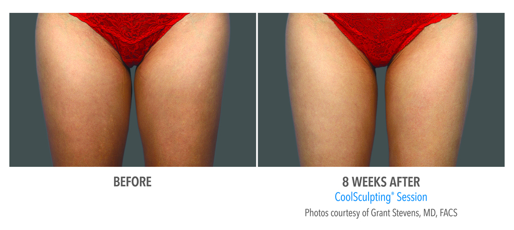 CoolSculpting inner thighs session before and 8 weeks after