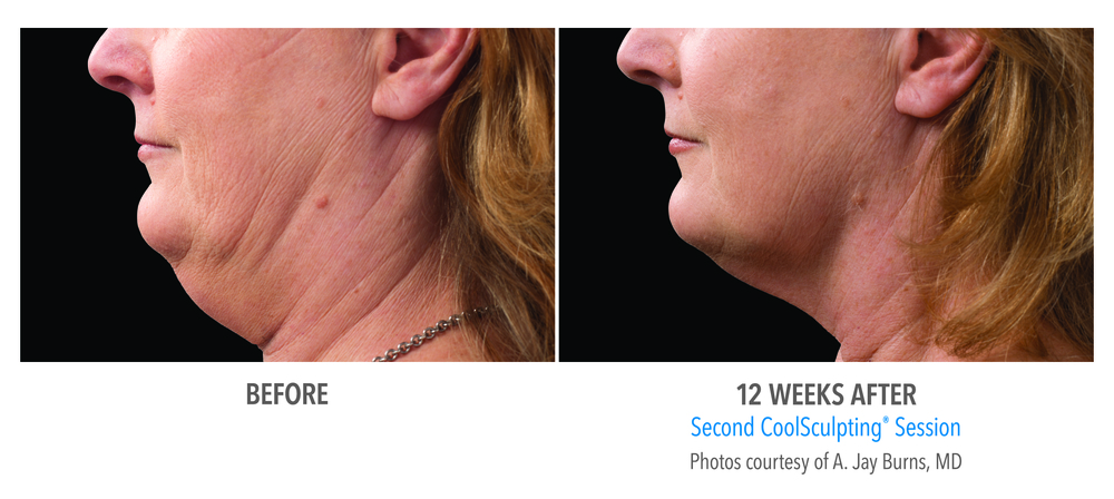 Second CoolSculpting chin session 12 weeks after