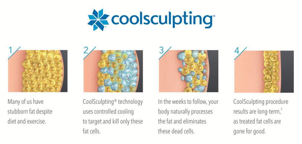 CoolSculpting Scientific technology showing the natural process of fat elimination