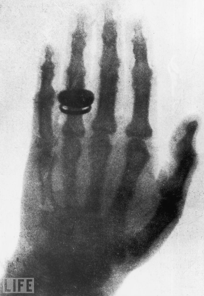 "Its rather  fitting that I had a chest x-ray today. life: On this day in 1895, scientist Wilhelm Roentgen discovers X-Rays. When Wilhelm Roentgen took the very first X-ray photograph — a ghostly image of his wife's hand — in 1895, the German physicist not only earned himself the very first Nobel Prize in Physics, he also gave the world the gift of creepy skeletal photographs and seeing bizarre things stuck inside living but unlucky people. Pictured: 1896 X-ray of Roentgen's wife's hand, similar to the very first X-ray picture. Upon seeing her skeletal hand, she reportedly exclaimed, ""I have seen my own death!"" (see more — Extraordinary X-Rays)"