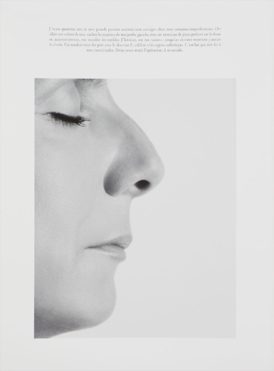 Sophie Calle, Le nez / The plastic surgery, digital print on 100% cotton paper, 27 3/5 x 19 7/10 inches