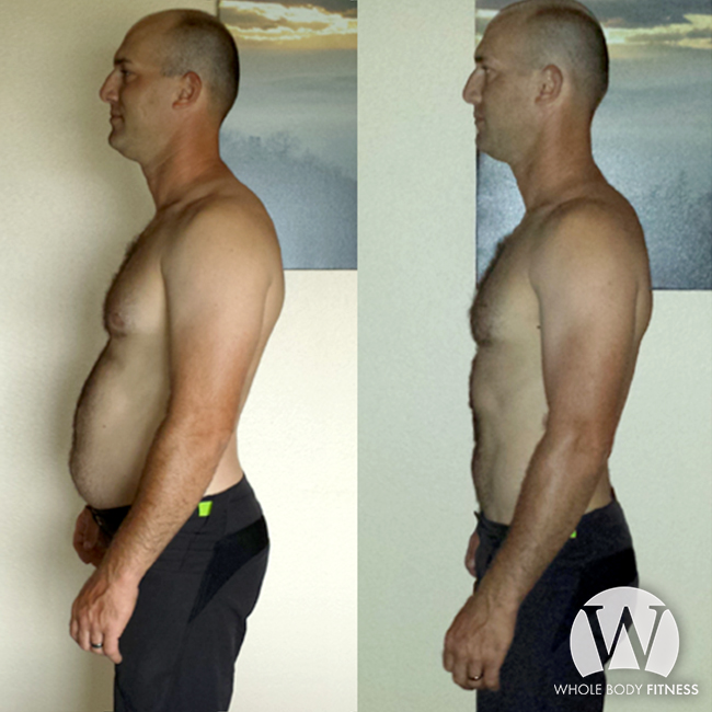 How to lose belly fat without surgery