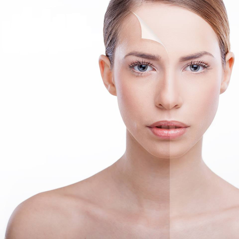 Skin Peel - brighter, smoother and younger looking skin.