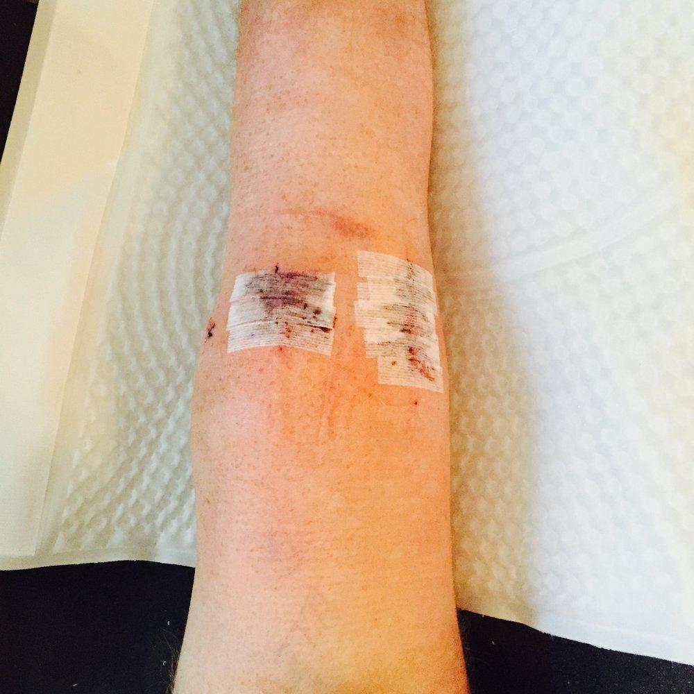 braceunder knee