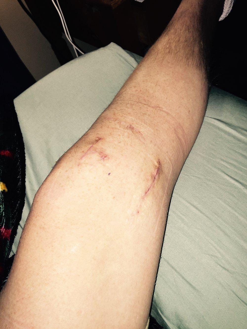 knee braceunder