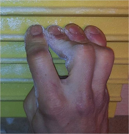 Figure 2. Hiperextension of the DIP (Distal Interphalangical) joint during crimp grip.Photo: Eva López