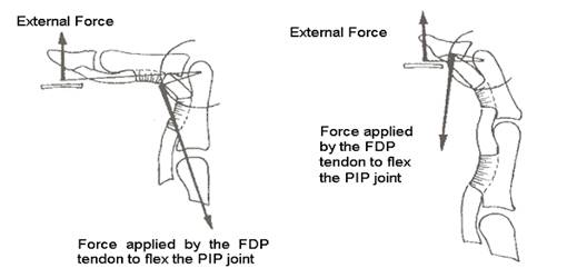 Figure 4. Moment arms of the FDP tendon across the PIP and the DIP joint in relation to moment arms of external force at across the PIP and DIP joint, crimp grip position on the left, slope grip on the right. While using the slope grip position less force of the FDP tendon is required to reach equilibrium (Schweizer, 2001) (copyright Journal of Biomechanics, 34, 2001)