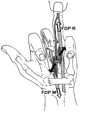 Figure 8.  The shift of the deep flexor tendons of the ring (FDP R) and the middle (FDP M) finger during a one-finger-pocket hold increases the distance between the adjacent two origins (black arrows) of the third lumbrical (L). This may cause disruption and tear of this muscle (Schweizer, 2003) (Copyright J Hand Surg Am 28 B: 187–189, 2003).