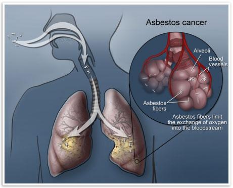 asbestos-cancer.jpg