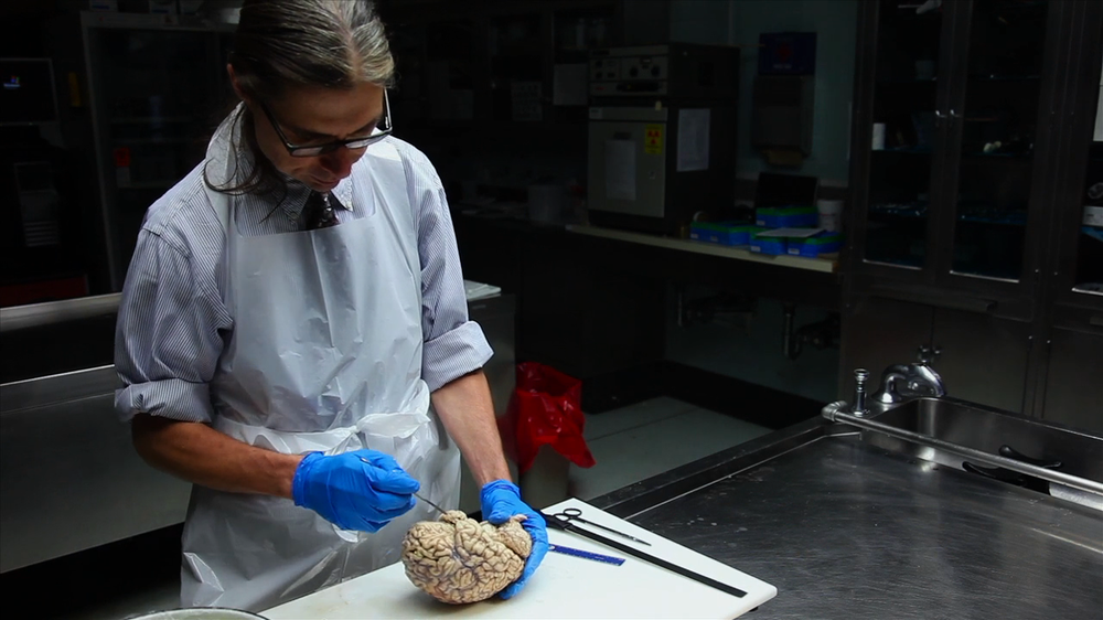 "Pathologist Mark Rodgers, Case Western Reserve University, Cleveland, OH, autopsies a brain with Alzheimer's. (Screenshot from ""Monster in the Mind,"" Carper, J. Producer, 2017)"