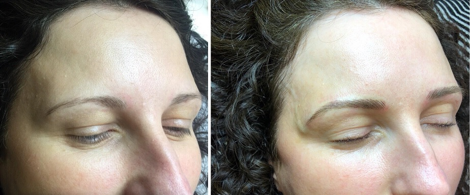 eyebrow feathering tattoo melbourne before after 12.jpg
