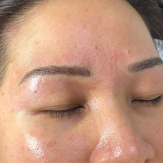 Brow correction ✨ Covering up an old block tattoo to soften and reveal a more natural looking brow. Microblading will need to be refreshed between 6 - 18 months depending on the skin type and lifestyle factors. . . . . . #brow #tattoo #microblading #melbourne #beauty #hawthorn #browtattoo #powderbrow #ombrebrows #browfeathering #cosmetictattoo #eyebrow #lips #eyeliner