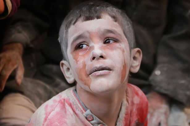 """Look at me, I am the eyes of suffering. I am Syria!"