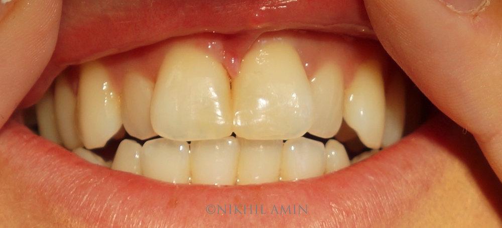 Before Treatment Teeth