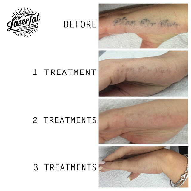 Lasertat Tattoo Removal Adelaide