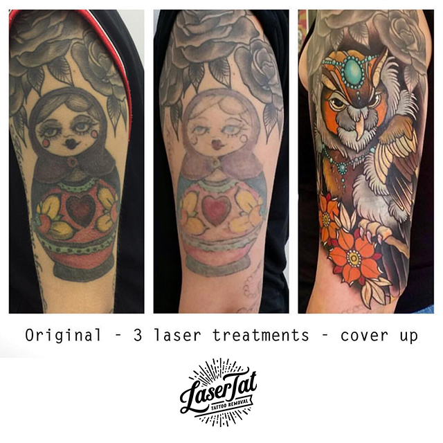 lasertat14.jpg