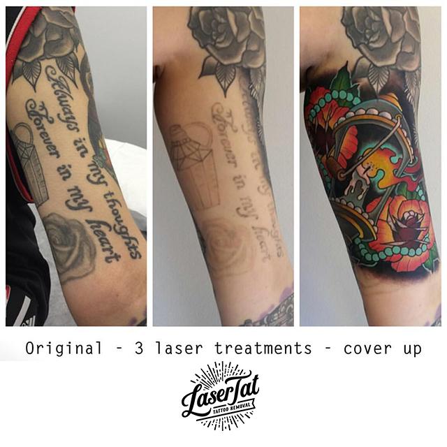lasertat16.jpg