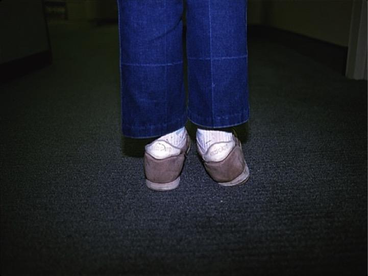 kid foot.jpg