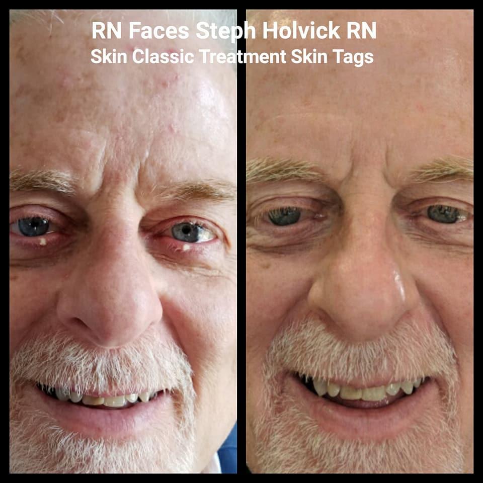 skin-classic-5.jpg