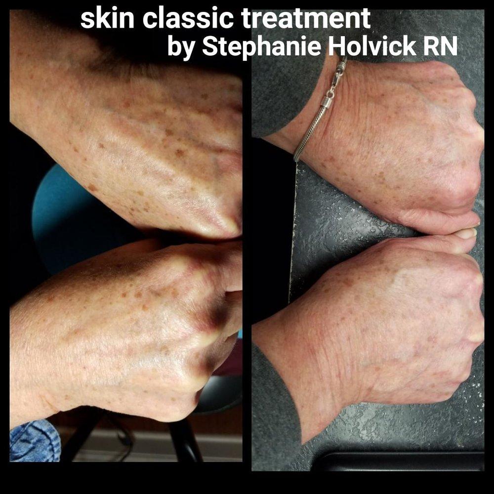skin-classic-7.jpg