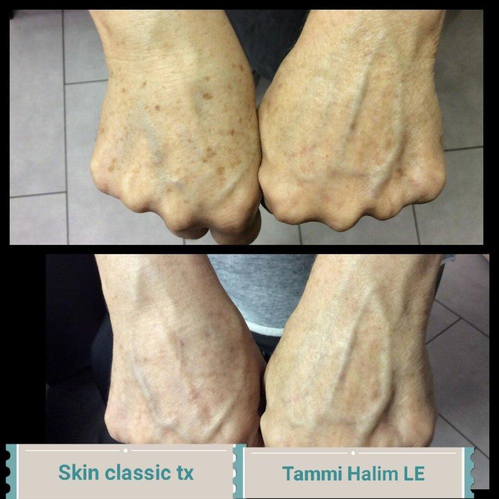 skin-classic-8.jpg