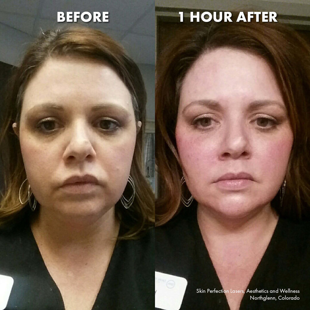 "DO YOU WANT TO LOOK 10 YEARS YOUNGER? - Check out these unedited results of our famous ""Liquid Facelift"" from one of our very own estheticians, Kate. One hour after her treatment, her face was visibly lifted, fine lines were diminished and her skin was overall more youthful looking! Call us at 720-502-6168 to schedule your free Liquid Facelift consultation."