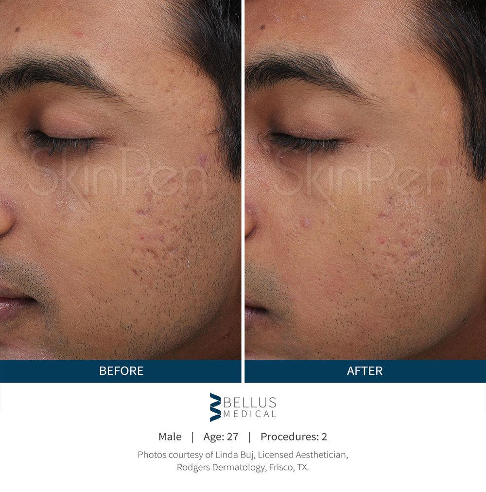 skinpen-male-before-after-1.jpg