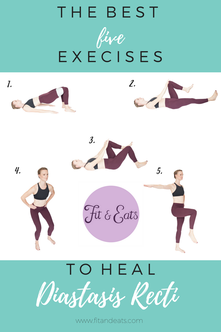 The best 5 exercises to help heal Diastasis Recti.