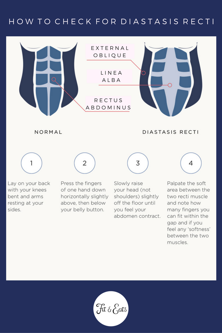 How to check for Diastasis Recti.