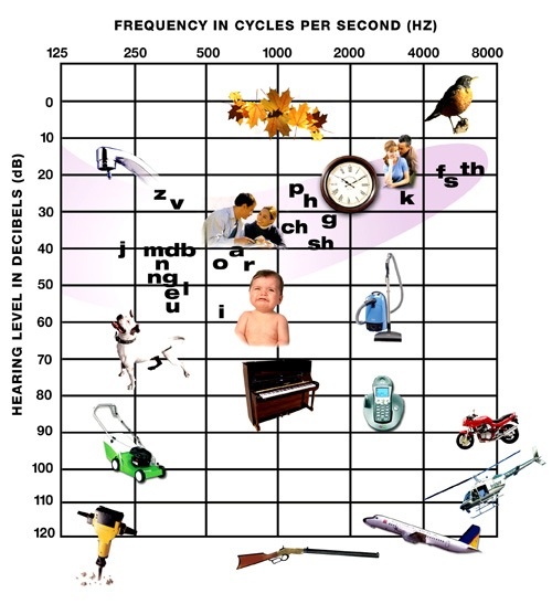 """This is a standard hearing chart. The colored part is called the """"Banana"""" and is what """"normal"""" hearing would look like. Since I have mid to severe bilateral hearing loss, I can't hear whispers, leaves bristling, water dropping, [p], [sh], [th], clock ticking."""