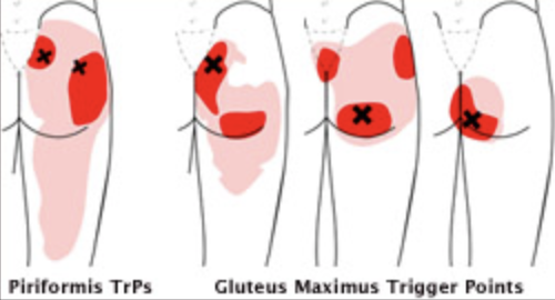 "The ""x"" shows the trigger point and the red shows where the pain/referral pain can be felt."