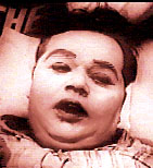 Roscoe Arbuckle is a patient...