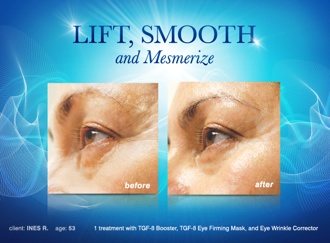 Image Credit/Source: http://lemieuxcosmetics.com/categories/eye-care-wrinkle-corrector