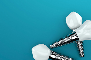 When enough damage leads to tooth loss, dental implants offer the ultimate solution for optimal function and confident smiling.