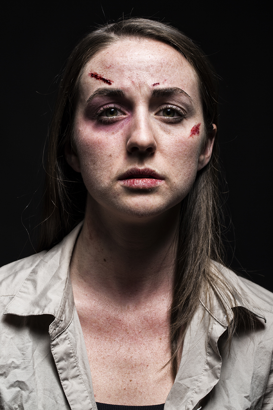 Special Effects - Domestic Abuse Victim
