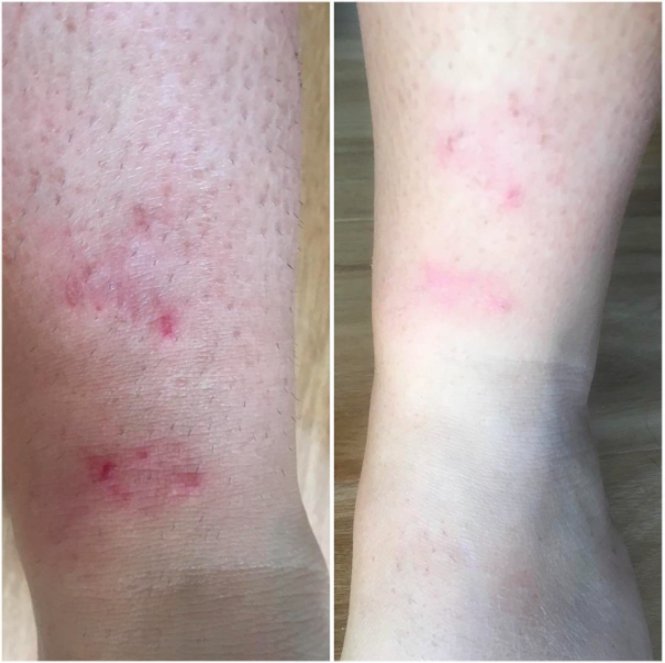 Delicious Skin before and after eczema prone skin