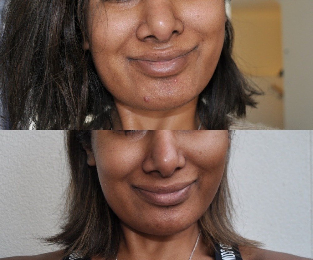 Before and after one month of using Delicious Skin