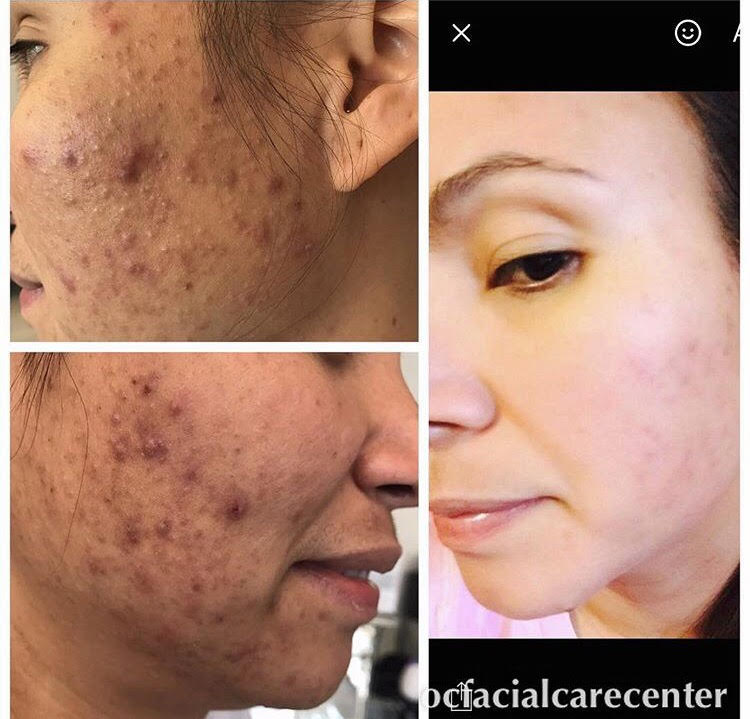 30 Days on Acne Protocol