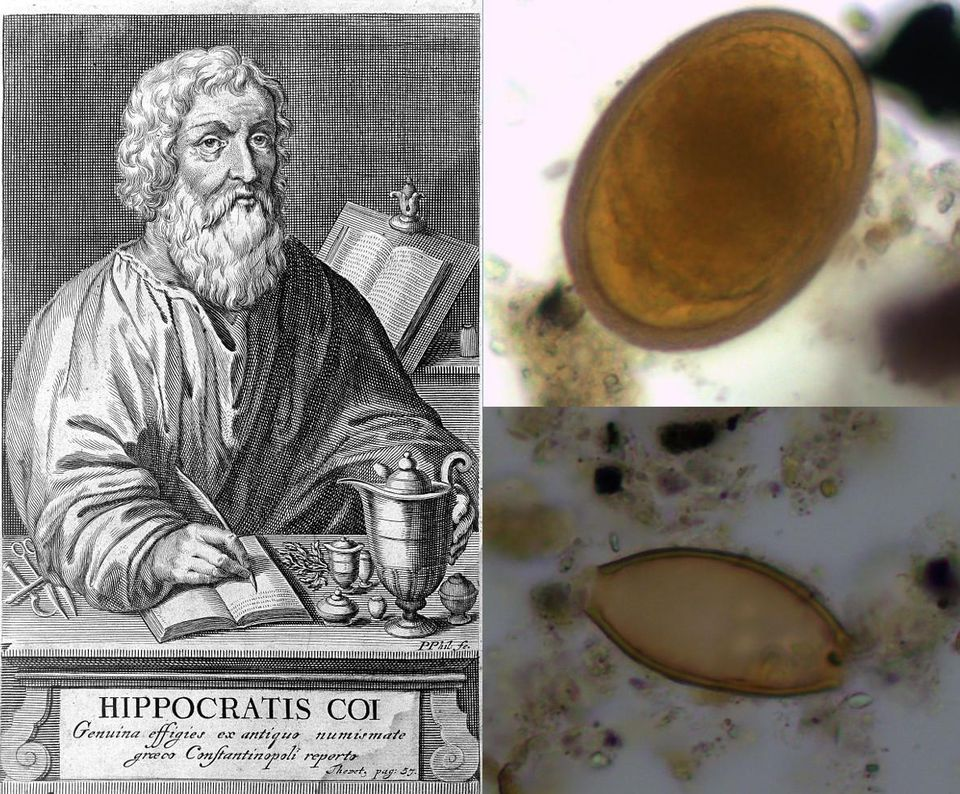 Portrait of Hippocrates of Kos, along with archaeological evidence of roundworm (top right) and whipworm (bottom right) found in burials on the nearby island of Kea.