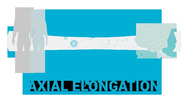 Axial-elongation.png