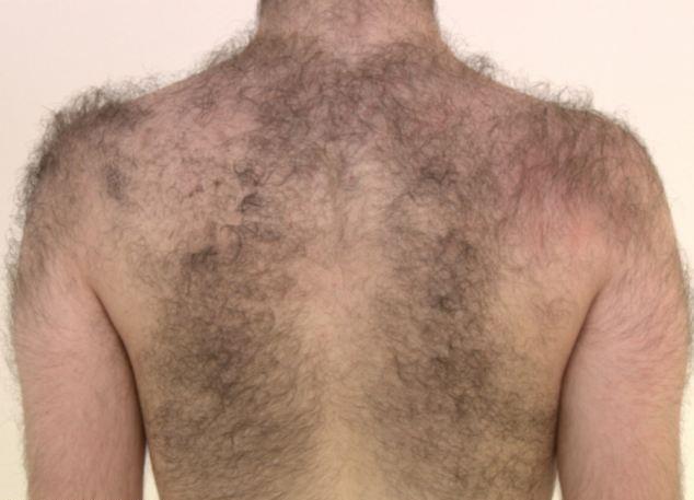 Hairy Back.jpg
