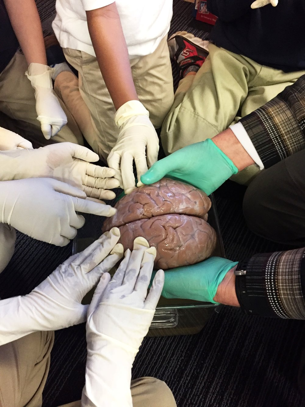 Students engage with a real human brain.