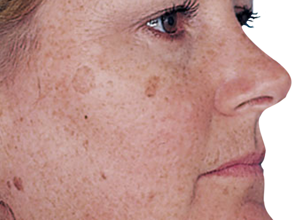 Treat Hyperpigmentation, Brown Spots, Sun Damage